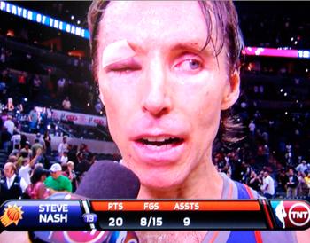 Steve-Nash-Eye-Injury-press-con-left-eye-nba-funny-photos