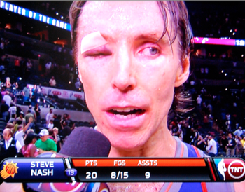 Steve-Nash-Eye-Injury-press-con-left-eye-nba-funny-photos